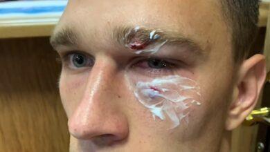 Photo of ГЛЕДАЙ: Рефер отнесе здрав бой от футболист на мач в Русия